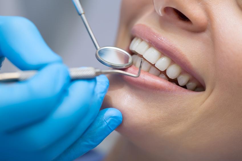 Frau wird nach Professioneller Zahnreinigung untersucht.