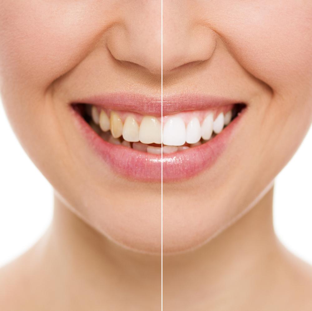 Vergleich zwischen bleaching und Zahnreinigung sowie normalen Zähnen